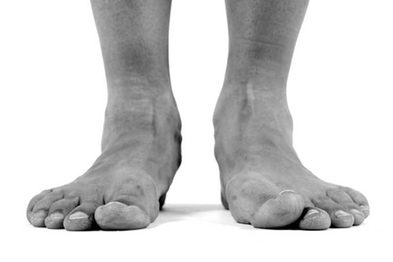 Podiatry is about more than just addressing specific issues. It's about retaining mobility.