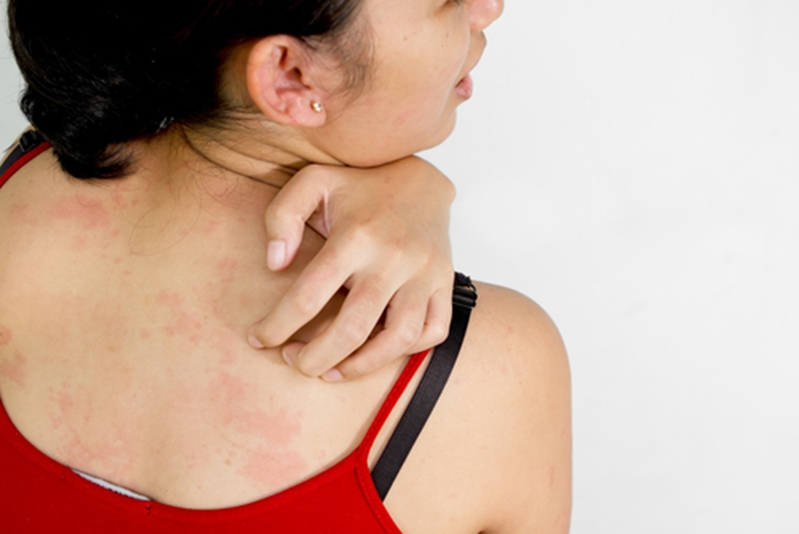 Eczema is often accompanied by an insatiable itching.