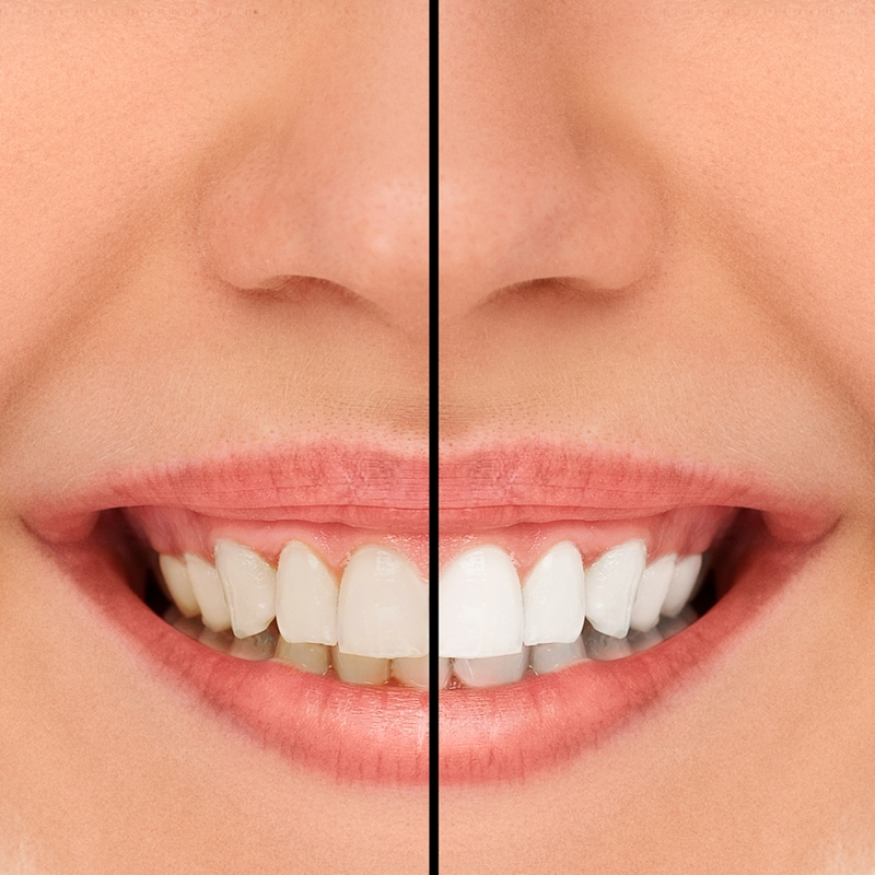 gingivitis (the more common form) can affect up to 80 per cent of the population