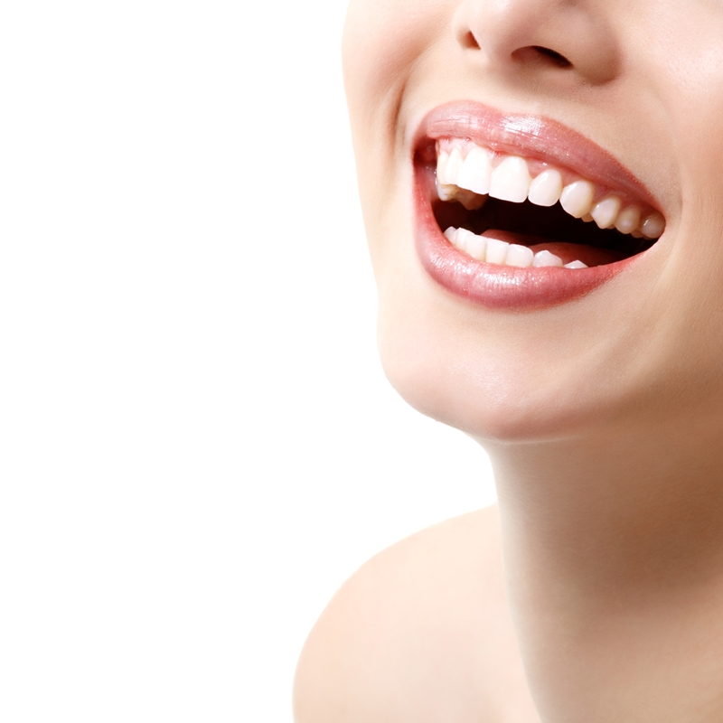Dental crowns and veneers can be used to create a white, straight-toothed smile.