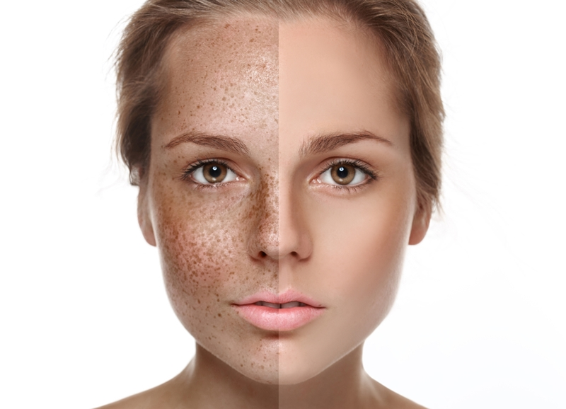 Wearing sunscreen can help to protect your skin from the signs of photo ageing.