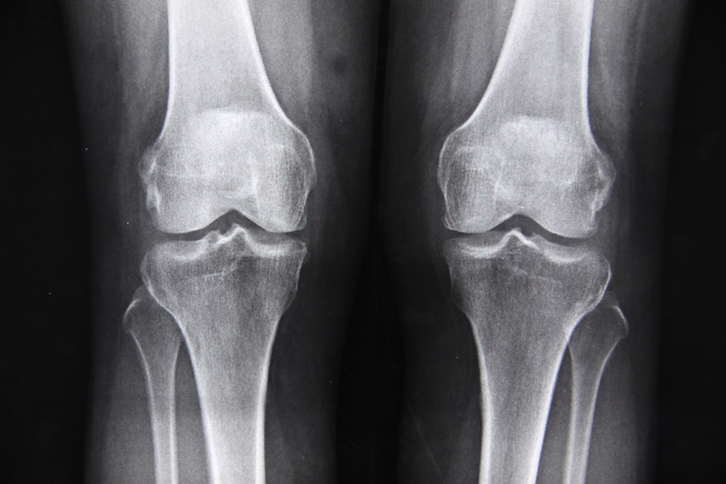 An X-ray of a patient's knees.
