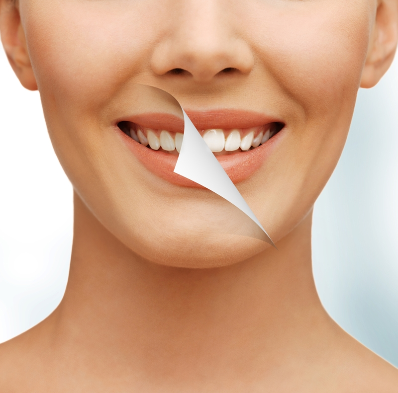 Woman with white teeth and DIY strips treatment