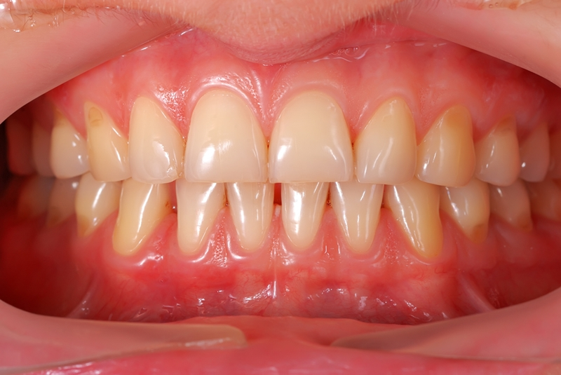 Healthy gums should be pink - not red and bloody.