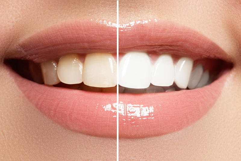 Bleaching can remove deep staining and restore your teeth to their original glow.