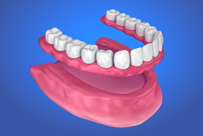 A complete denture could be the answer when a patient has no remaining teeth in their upper or lower jaw.