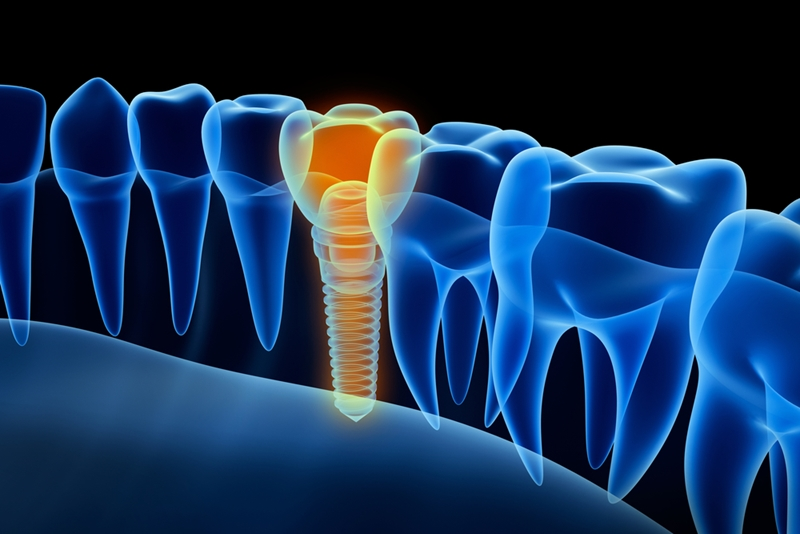 The function of the root is replaced by the implant screw.