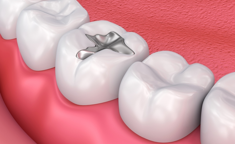 Your mouth and gums may be more prone to infection during cancer treatment.