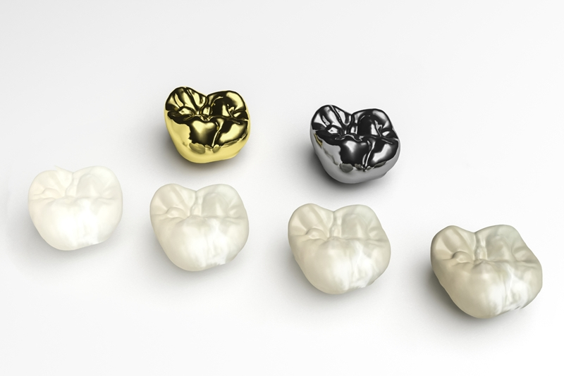 Porcelain, gold and more! There are plenty of dental crown materials out there.